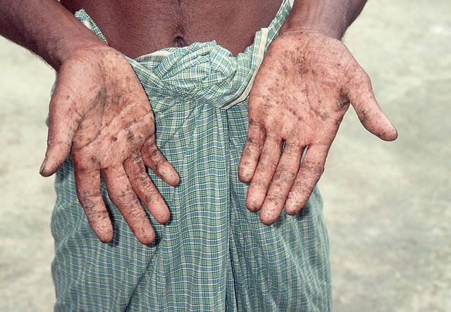 Photo: Skin lesions from arsenic poisoning. Source: http://www.flickr.com/photos/waterdotorg/3695494611/